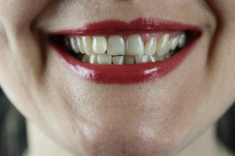 Zubni implantaty Praha jsou skvele vlastni zuby jsou vsak lepsi