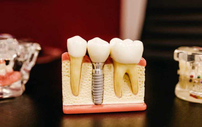 Privedte sve deti ke stomatologovi Praha vcas